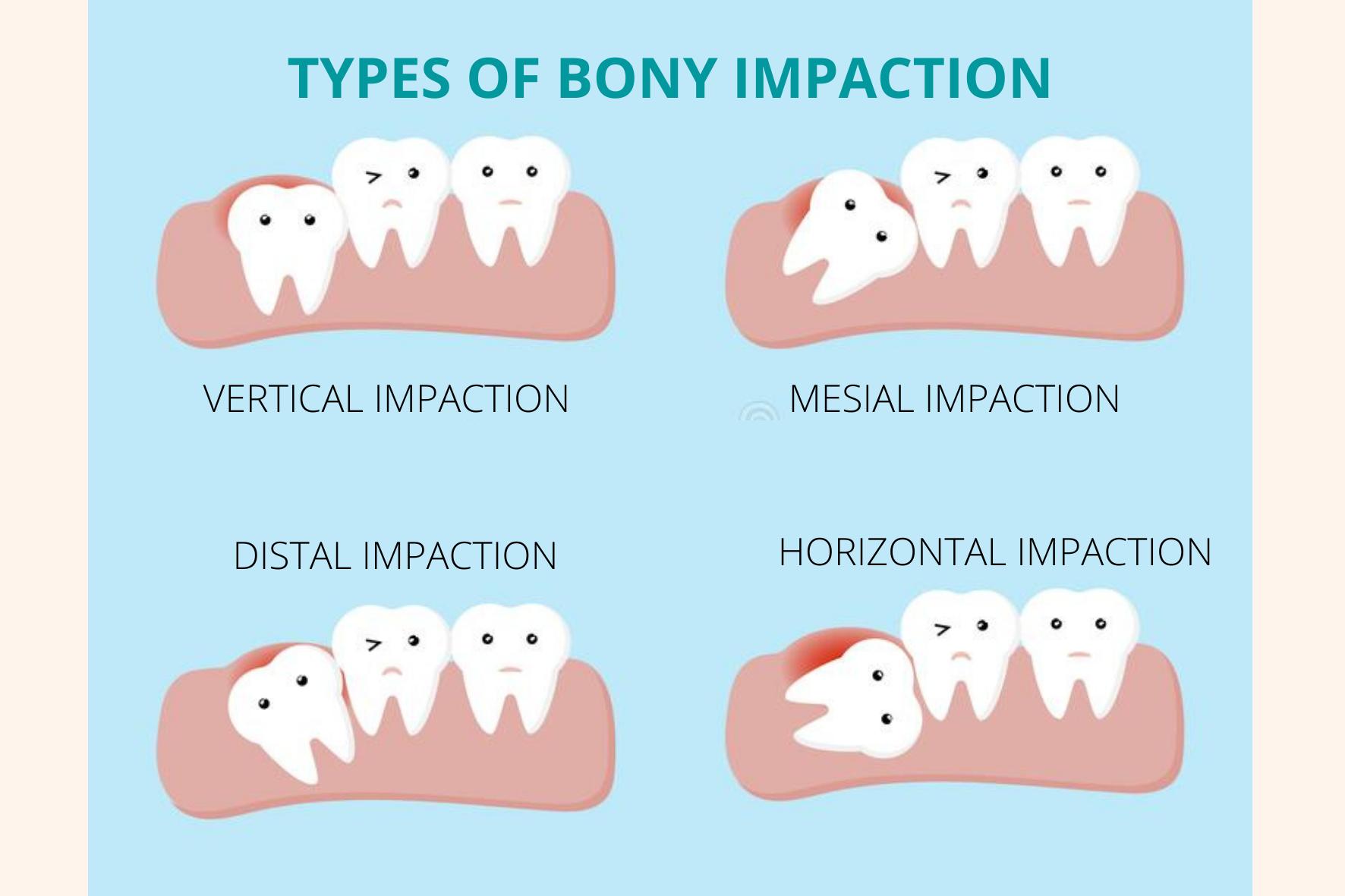 Types of Bony Wisdom Tooth Impaction
