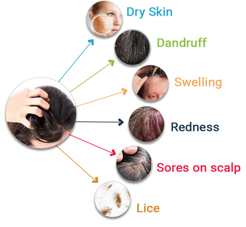 Dandruff Symptoms & Causes   Relieve Symptoms and suffering