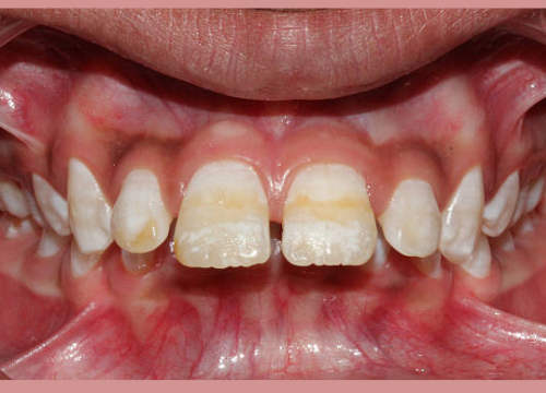 Types Of Teeth Stains
