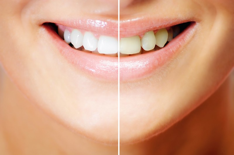 GET A PERFECT SMILE WITH STEEL BITE PRO