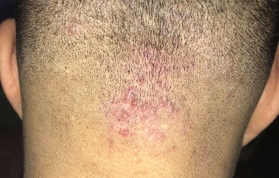 Follicle Condition:  Folliculitis |  What is hair made of - TopTenHairCare.net