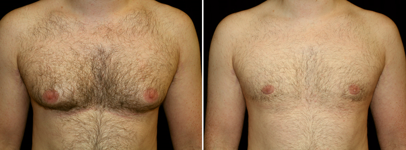 Puffy Nipples Surgery Before