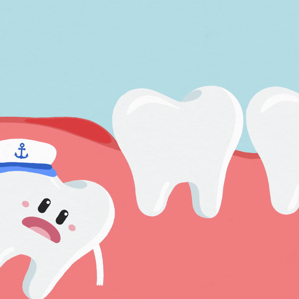 Why Do You Need To Remove Your Wisdom Tooth