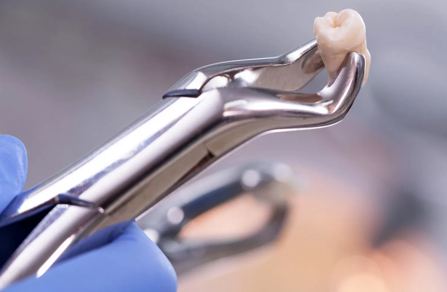Simple extraction for wisdom tooth