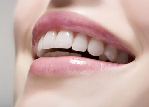 Normal Color Of Teeth